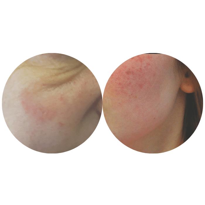 A kuperózis és a rosacea első fázis