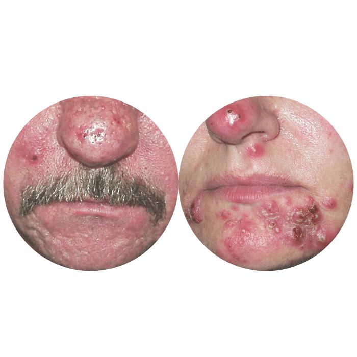 A kuperózis és a rosacea harmadik fázis